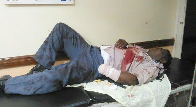 Enajenado amputa mano a un oficial Policía e hirió a otro
