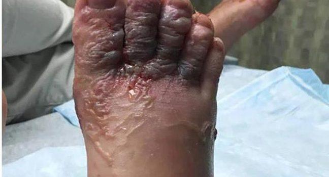 Ministerio de Salud evalúa riesgo larva migrans cutánea en área de Bávaro