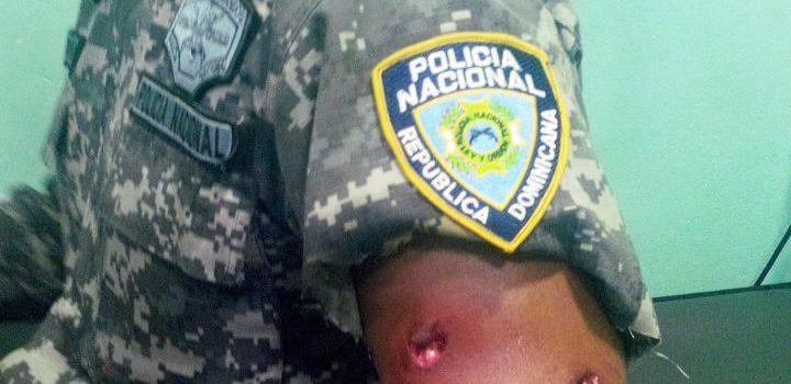Matan hombre y hieren dos entre ellos un policía ensanche Libertad