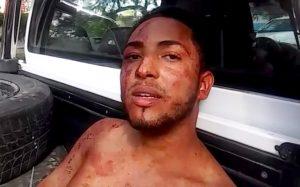 Hombre agrede a machetazos a sus padres en Gurabo
